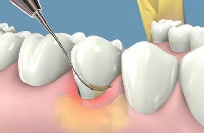 sâu răng hàm dưới